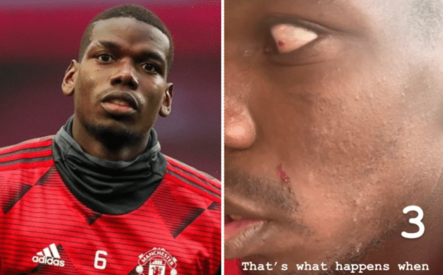 Paul Pogba shows off nasty cuts after being 'destroyed' by Manchester United teammate in training - Bóng Đá