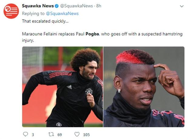 Ẩn sau chấn thương của Pogba, đó là cả một kế hoạch - Bóng Đá