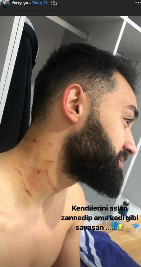 Sốc: Cầu thủ bị đối thủ dùng dao cứa cổ ngay trên sân - Bóng Đá