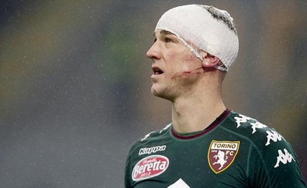 Joe Hart đổ máu vì bị gầm giày cào lên đầu