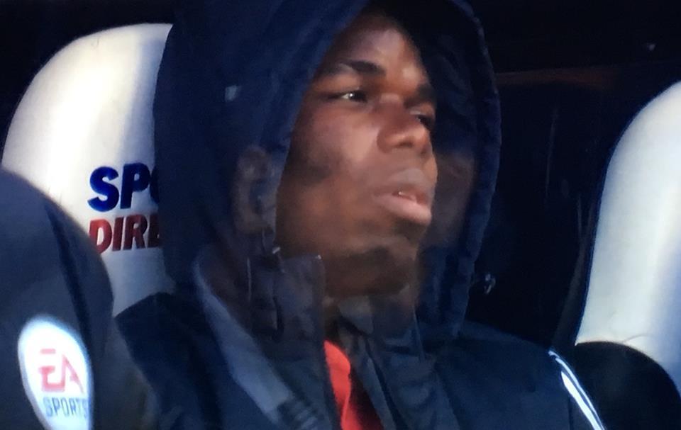Chấn thương, Pogba tập tễnh rời St James' Park? - Bóng Đá