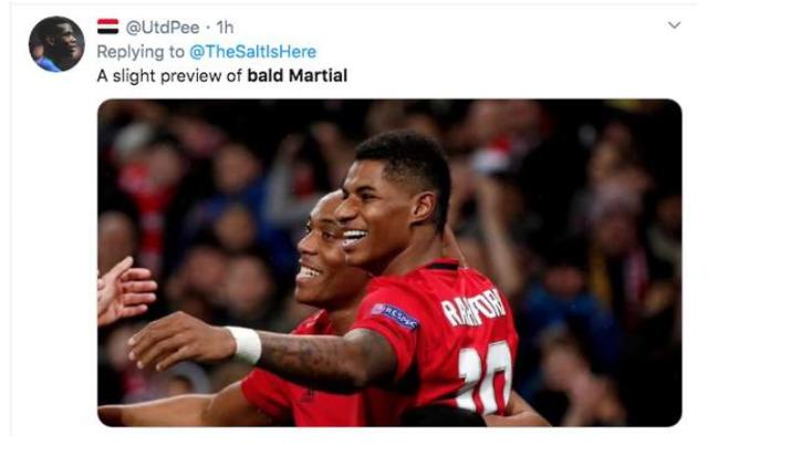 Man Utd star Anthony Martial baffles fans with bold new look - Bóng Đá