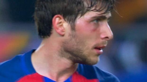 Sergi Roberto đã 'ngán' hàng thủ Barca?