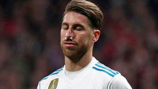 Cập nhật tình hình chấn thương mũi của Sergio Ramos - Bóng Đá