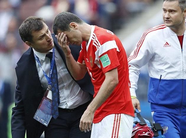 TRỰC TIẾP Nga 1-0 Saudi Arabia: Dzagoev dính chấn thương rời sân (H1) - Bóng Đá
