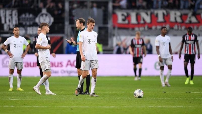 Sự chuẩn bị của Bayern cho trận gặp Dortmund đang rất tồi tệ.