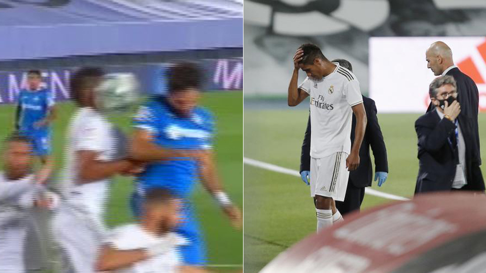 Varane forced off after being hit in the face with the ball - Bóng Đá