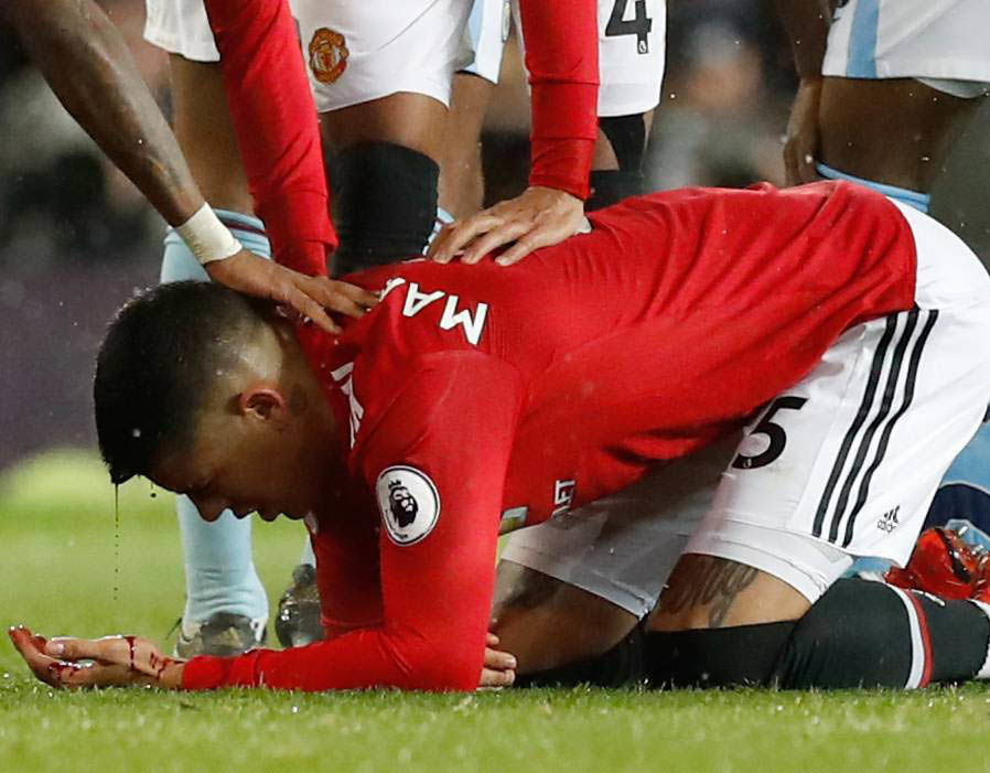 Lingard phát hoảng với chấn thương đầu của Rojo - Bóng Đá