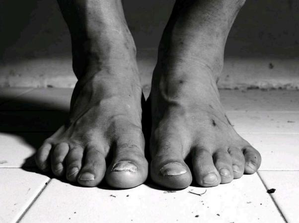 Ibrahimovic - từ đôi chân đầy sẹo đến ngôi nhà trong mơ - Bóng Đá