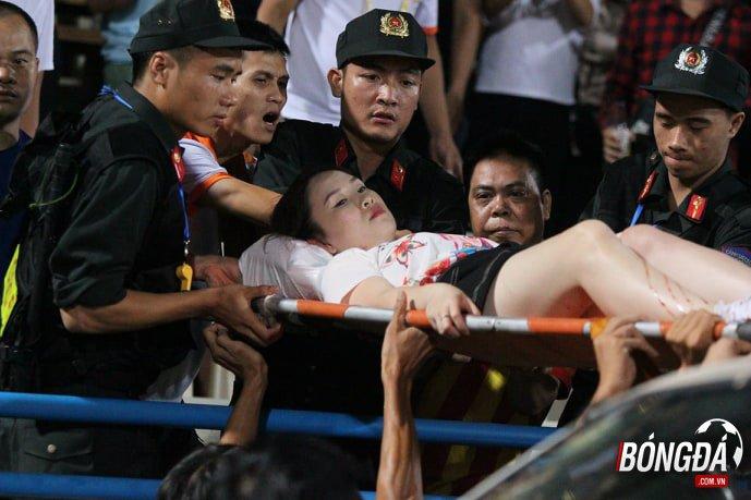Sự cố sân Hàng Đẫy gây thương tích nghiêm trọng sẽ đề nghị xét xử hành sự - Bóng Đá