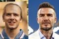 Beckham từng bị dự đoán hói đầu, rụng răng vào năm 2020