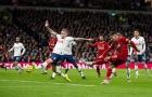 CĐV Arsenal: 'Liverpool làm ơn thua 1 trận thôi'