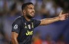 Emre Can đưa ra so sánh bất ngờ về Liverpool và Juventus