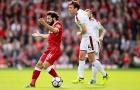 Liverpool 1-1 Burnley: Klopp hết phép?