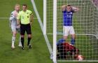 CHOÁNG! Thua thảm, Leicester City còn gặp tổn thất lớn khi gặp M.U