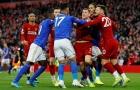 SỐC! Klopp nói thẳng cái tên Liverpool gây hấn dẫn đến vụ ẩu đả
