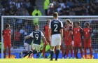 Làm nền cho 2 siêu phẩm, Joe Hart 'khiến' tuyển Anh suýt thua trước Scotland