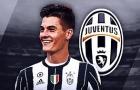 Patrick Schick, tân binh rất đáng kỳ vọng của Juventus