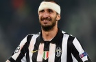 Giorgio Chiellini - Trung vệ thép của Juventus và đội tuyển Italia