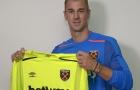 CHÍNH THỨC: West Ham công bố bản hợp đồng Joe Hart