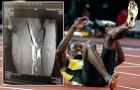 Usain Bolt lỡ cơ hội khoác áo Quỷ đỏ