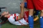 Ăn mừng phấn khích, Muller nghỉ thi đấu 7 tháng