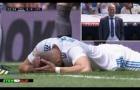 Cận cảnh chấn thương của Benzema