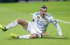 Gareth Bale lại chấn thương: Cái lắc đầu của Perez
