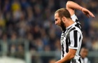 Phẫu thuật thành công, Higuain vẫn kịp dự trận đấu với Napoli