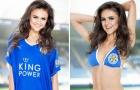 Megan Elliott - Người đẹp lấy Leicester làm cảm hứng