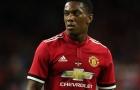 Mourinho sẽ dùng đội hình nào để đấu với Stoke City?