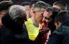 Đối phương giật cùi chỏ, sao Atletico Madrid gãy 3 răng cửa