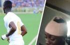SỐC NẶNG! Hậu vệ M.U mặc áo số 9, ghi bàn rồi chấn thương đầu rời sân