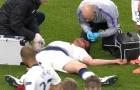 Tình trạng Vertonghen ra sao sau chấn thương kinh hoàng trước Ajax?