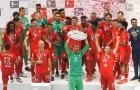 Bayern Munich trước mùa giải mới: Khó khăn bủa vây nhiều hơn tưởng tượng