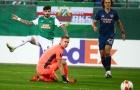 Sao Arsenal mắc lỗi tai hại, Arteta có tuyên bố bất ngờ
