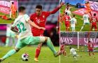 Vắng hàng loạt trụ cột, Bayern Munich hòa như thua tại Bundesliga