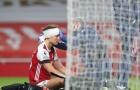 SỐC! Sao Arsenal băng đầu thi đấu, Arteta bị tố 'vô nhân đạo'