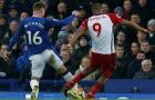 SỐC: Ham tranh chấp, sao Everton gãy chân kinh hoàng
