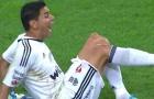 Đầu gối biến dạng kỳ dị, cựu tuyển thủ Argentina khóc nức nở