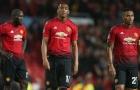 Bắt bệnh các đại gia Ngoại hạng Anh: Man United nặng nhất?