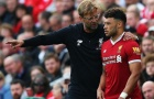 Mane chấn thương, gặp MU sẽ là điểm khởi đầu cho Chamberlain tại Liverpool