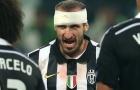 Giorgio Chiellini: Vị thủ lĩnh không thể chối cãi của Juve