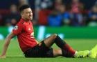 'Lingard là lí do để Chelsea đánh bại Man Utd'