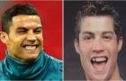 Các sao bóng đá trước và sau phẫu thuật thẩm mỹ