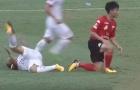Dương Văn Hào gãy 1/3 xương chày