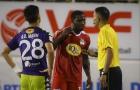 Vòng 11 V-League 2018: HAGL và SLNA tổn thất nặng về lực lượng
