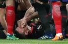 Tiết lộ SỐC quanh chấn thương của sao Arsenal