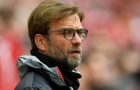 Ngủ quên trên chiến thắng, Liverpool rất có thể phải nhận bài học nhớ đời từ Man City