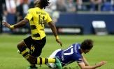 Batshuayi chấn thương nặng, giấc mơ World Cup vuột khỏi tầm tay